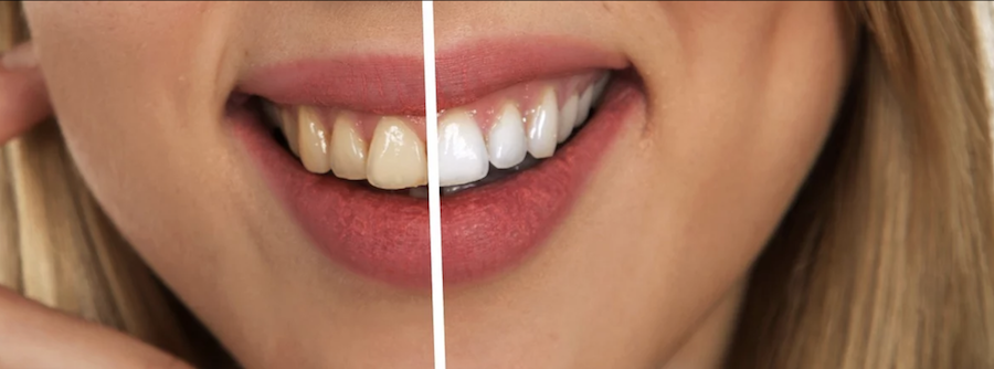 What Are Your Teeth Whitening Treatment Options?